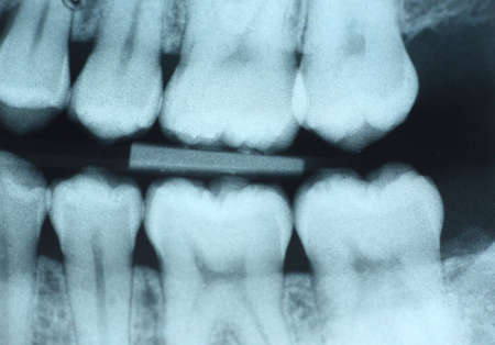 This is a dental x-ray (bite-wing) of the left side without any visible decay.